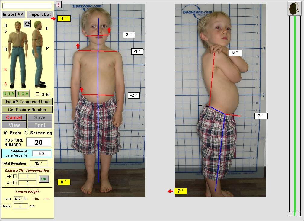 Osteopathy postural exam seoul korea